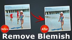 5 Selective Blemish Remover Tools